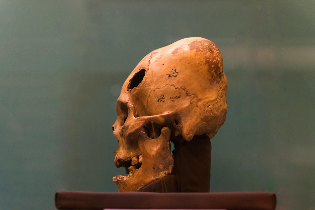 Crâne de Paracas